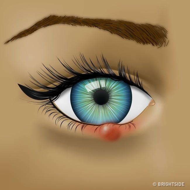 Nhận biết tình trạng sức khỏe qua những dấu hiệu của mắt - Ảnh 2.