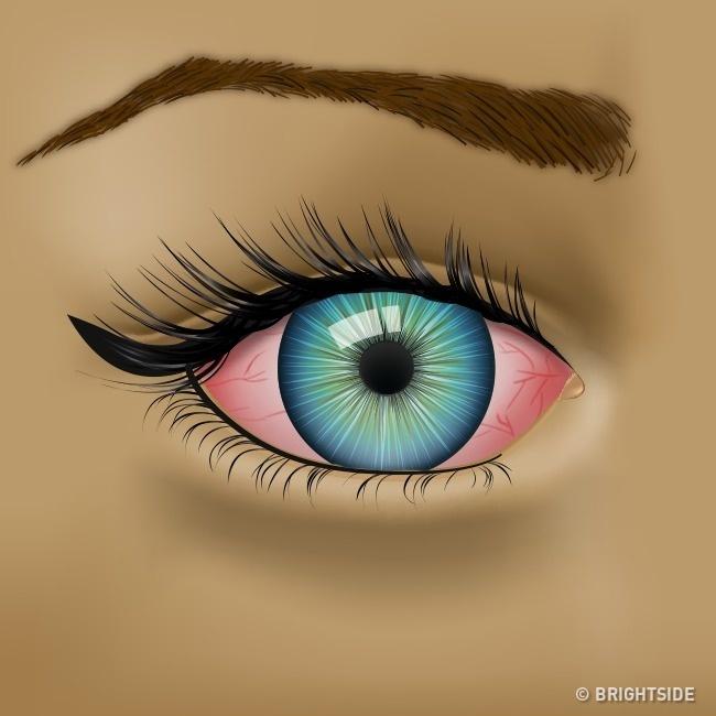 Nhận biết tình trạng sức khỏe qua những dấu hiệu của mắt - Ảnh 4.