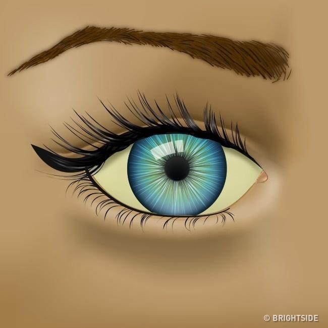 Nhận biết tình trạng sức khỏe qua những dấu hiệu của mắt - Ảnh 6.
