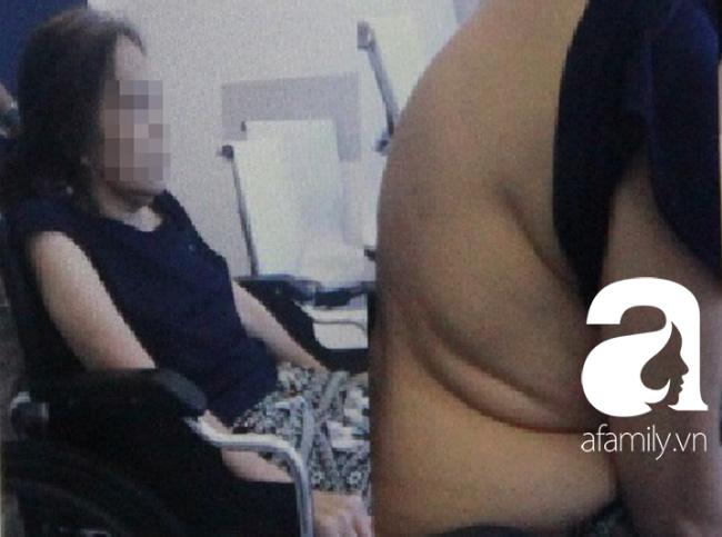 Người phụ nữ bị U gây bệnh nhuyễn xương đầu tiên tại Việt Nam được cứu chữa ngoạn mục - Ảnh 1.