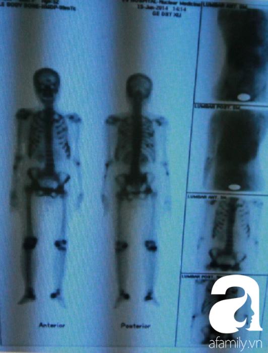 Người phụ nữ bị U gây bệnh nhuyễn xương đầu tiên tại Việt Nam được cứu chữa ngoạn mục - Ảnh 2.