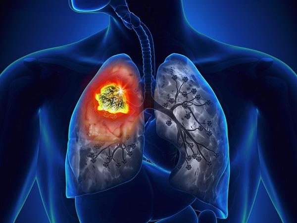 Nhiều người đã từng gặp 8 dấu hiệu này mà không biết đó là cảnh báo của bệnh ung thư phổi - Ảnh 1.