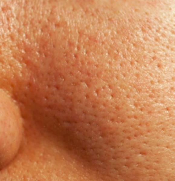 Kiên trì thực hiện các bước chăm sóc này, lỗ chân lông có to như nào cũng được se khít nhanh chóng - Ảnh 1.