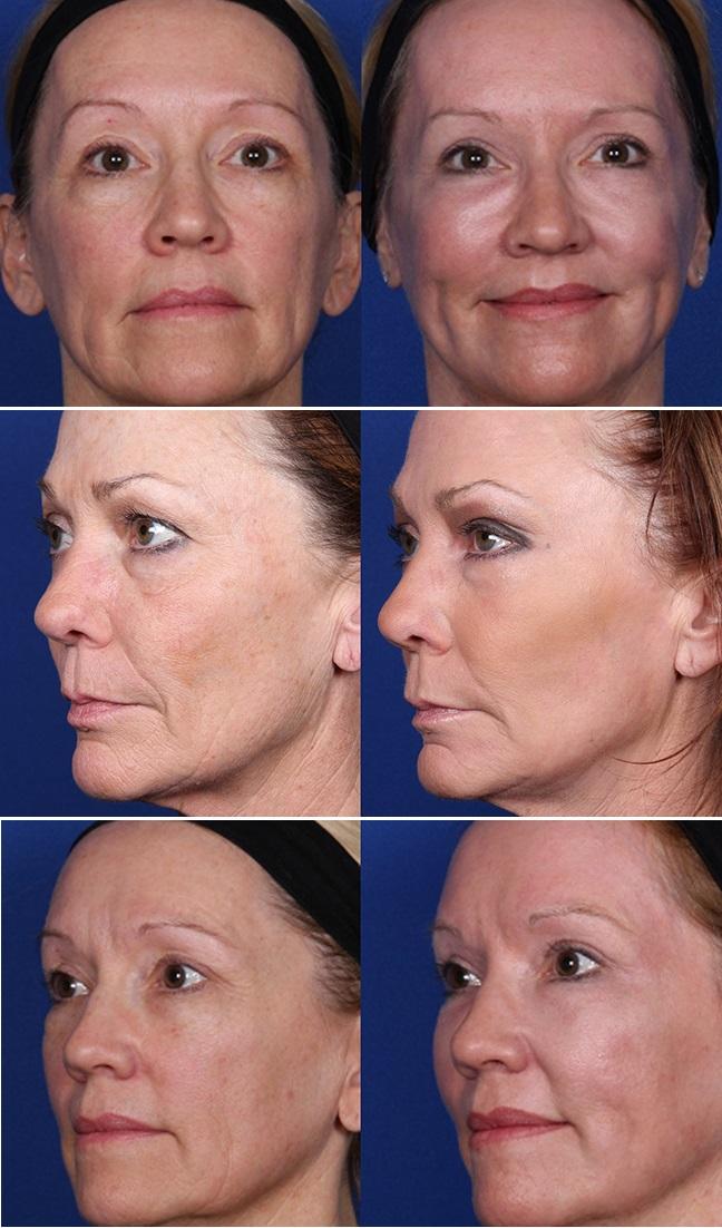 J-Plasma - Thêm một phương pháp làm trẻ hóa da thần kì hơn cả Botox và Laser - Ảnh 1.