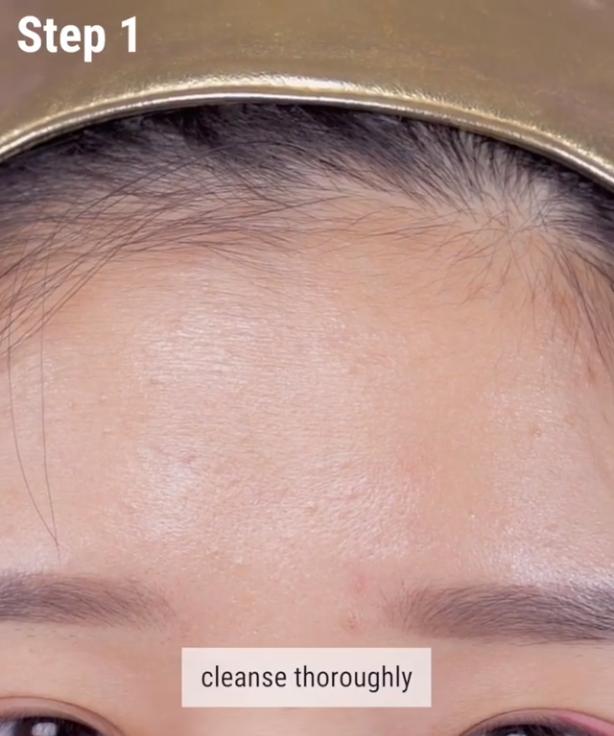 Nếu bạn đang khổ sở vì mụn đầu trắng thì đây chính là bí kíp nặn mụn chuẩn nhất dành cho bạn - Ảnh 3.