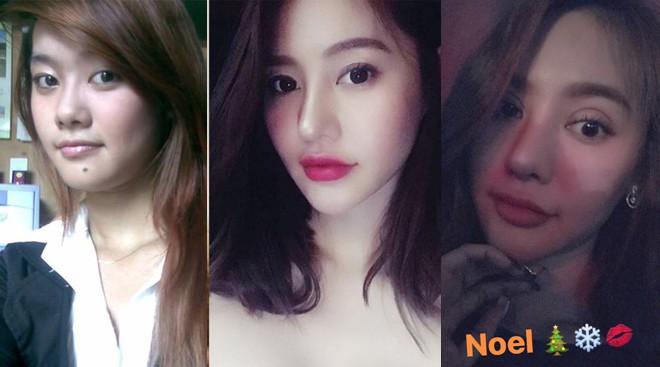 Mũi cao môi tều chưa đủ, Linh Chi quyết thay đổi nhan sắc hoàn toàn bằng đôi mắt 2 mí dày cộp - Ảnh 7.