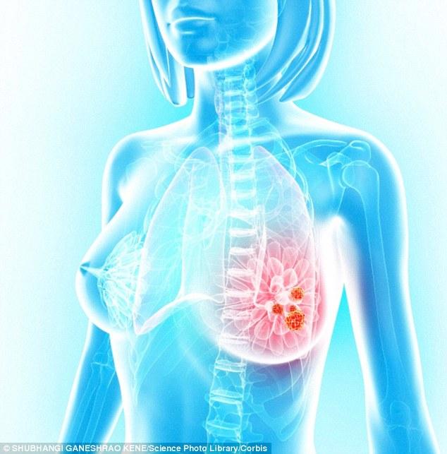 Nữ sinh 19 tuổi mắc bệnh ung thư vú vì thói quen hầu như ai cũng làm - Ảnh 3.