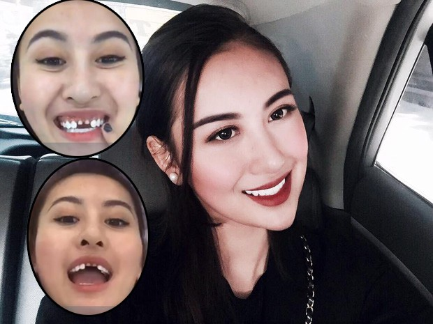 răng sứ - Ảnh 4.