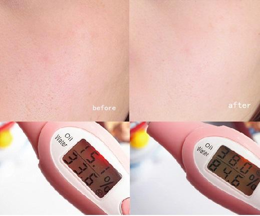 3 dòng mặt nạ dưỡng ẩm thần thánh cho mùa hè mà đến da nhạy cảm cũng có thể dùng được - Ảnh 13.