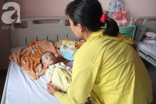 Xót xa bé trai 1 tuổi nặng chỉ hơn 3 kg, kiên cường chống chọi bệnh tật - Ảnh 1.