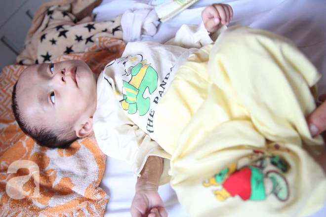 Xót xa bé trai 1 tuổi nặng chỉ hơn 3 kg, kiên cường chống chọi bệnh tật - Ảnh 4.