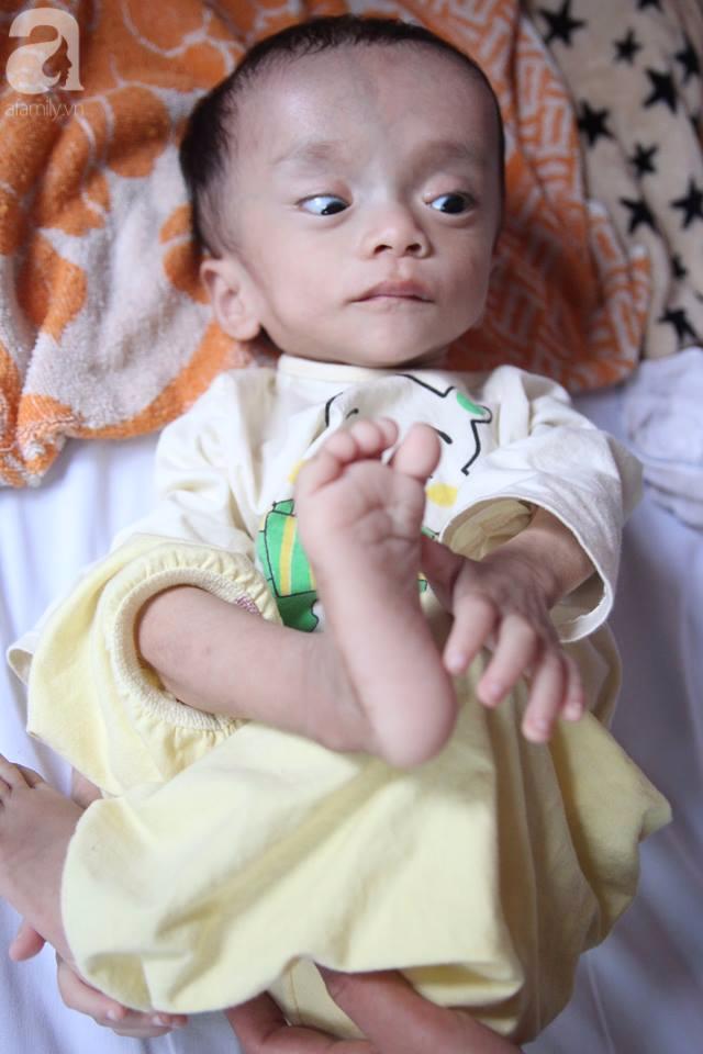 Xót xa bé trai 1 tuổi nặng chỉ hơn 3 kg, kiên cường chống chọi bệnh tật - Ảnh 3.