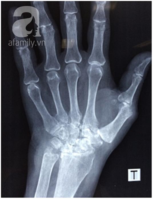 Ngồi máy vi tính suốt 8 tiếng một ngày, nữ biên tập viên suýt tàn phế vì bị hủy khớp ngón tay - Ảnh 2.