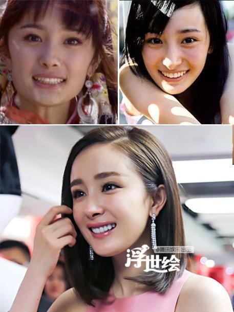 Sao Hoa Ngữ: người chăm chút chỉnh răng, người lại buông xuôi mặc kệ - Ảnh 5.
