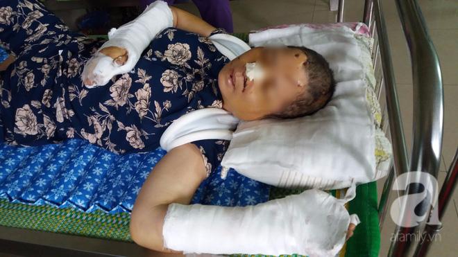 Bà Nguyệt đang điều trị tại bệnh viện đa khoa tỉnh Ninh Bình