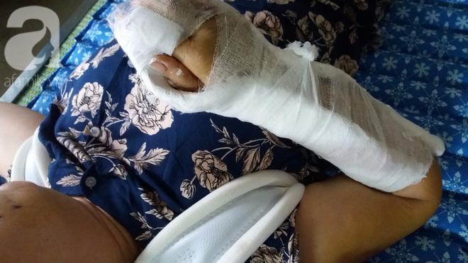 Hai cổ tay bà nguyệt bị chồng đánh gãy và dập nát