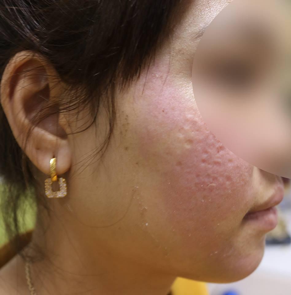 Hà Nội: Dùng kem trộn, một phụ nữ bị lột sạch da mặt, mất hàng trăm triệu điều trị nhưng chỉ phục hồi được 30-40% - Ảnh 3.