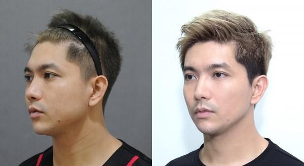Cặp đôi thị phi Tim - Trương Quỳnh Anh: Đã thẩm mỹ là phải làm cả đôi cùng lúc - Ảnh 11.