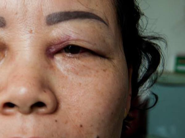 Hà Nội: Bảo vệ chung cư đánh nhân viên dọn vệ sinh đến tím mắt - Ảnh 2.