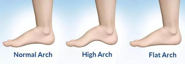 Nguyên nhân chẳng ngờ tới khiến bạn bị đau chân khi đi giày cao gót - Ảnh 8.