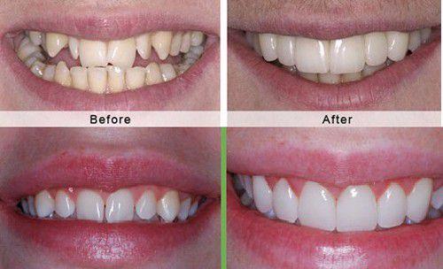 Bọc răng sứ rất đẹp, nhưng bên cạnh đó cũng đầy nhược điểm - Ảnh 11.