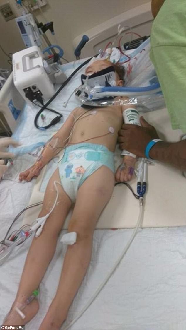 Bé gái 2 tuổi tổn thương não vì bị bảo mẫu là một cậu thiếu niên 16 tuổi trừng phạt 2