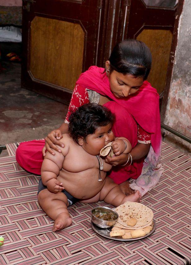Bé gái mới 8 tháng tuổi khiến bác sĩ sốc khi kiểm tra sức khỏe - Ảnh 3.