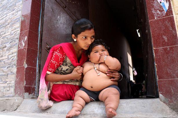 Bé gái mới 8 tháng tuổi khiến bác sĩ sốc khi kiểm tra sức khỏe - Ảnh 2.