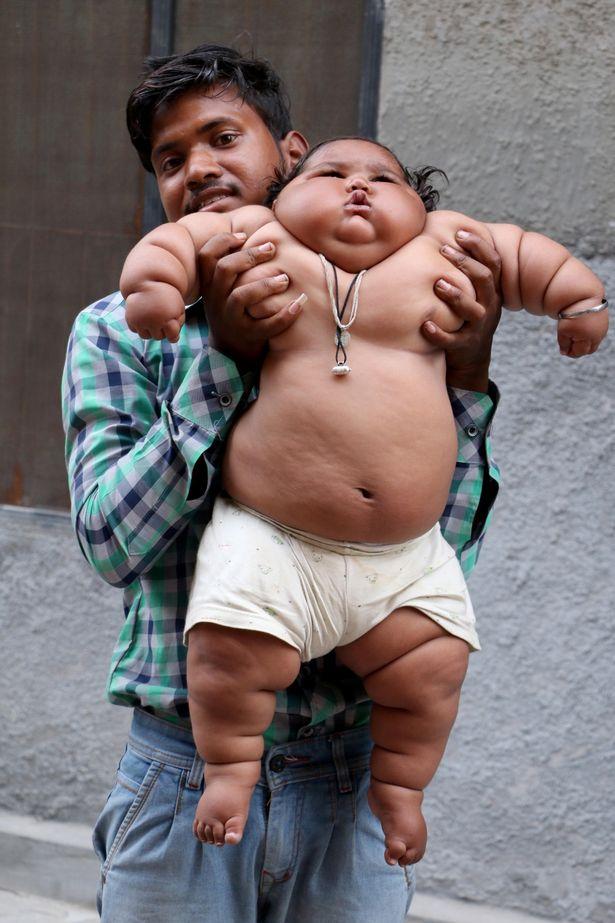 Bé gái mới 8 tháng tuổi khiến bác sĩ sốc khi kiểm tra sức khỏe - Ảnh 4.
