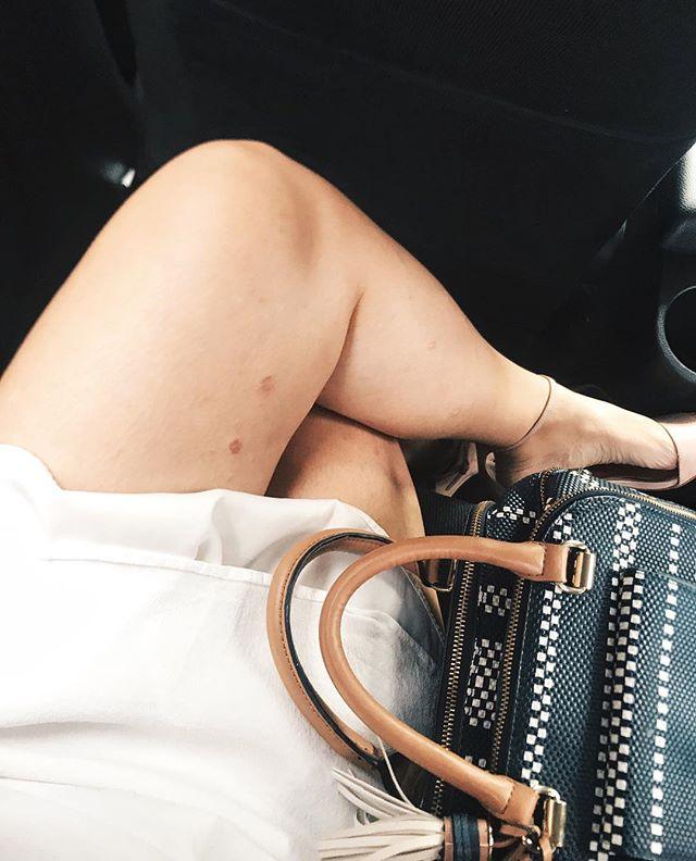Chia sẻ đầy cảm hứng của nữ nhạc sĩ xinh đẹp bị bệnh vẩy nến - Ảnh 3.