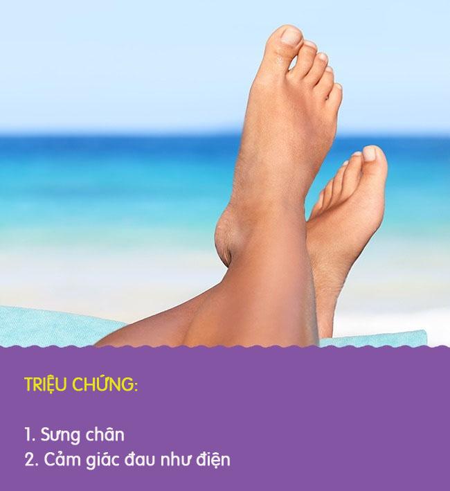8 biểu hiện khác lạ ở chân là dấu hiệu cảnh báo có thể bạn đang gặp bệnh nghiêm trọng - Ảnh 2.