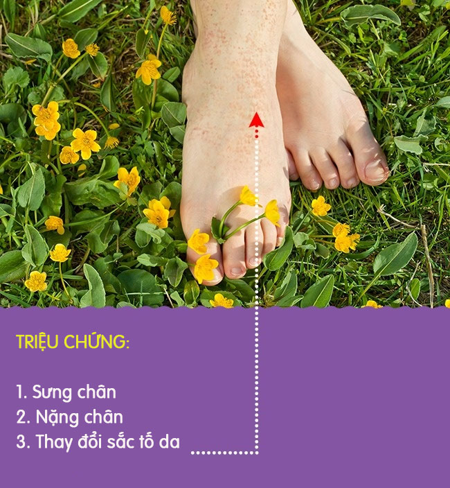 8 biểu hiện khác lạ ở chân là dấu hiệu cảnh báo có thể bạn đang gặp bệnh nghiêm trọng - Ảnh 3.