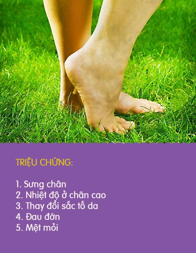 8 biểu hiện khác lạ ở chân là dấu hiệu cảnh báo có thể bạn đang gặp bệnh nghiêm trọng - Ảnh 5.