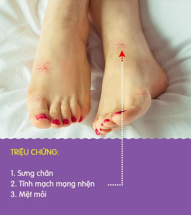 8 biểu hiện khác lạ ở chân là dấu hiệu cảnh báo có thể bạn đang gặp bệnh nghiêm trọng - Ảnh 6.
