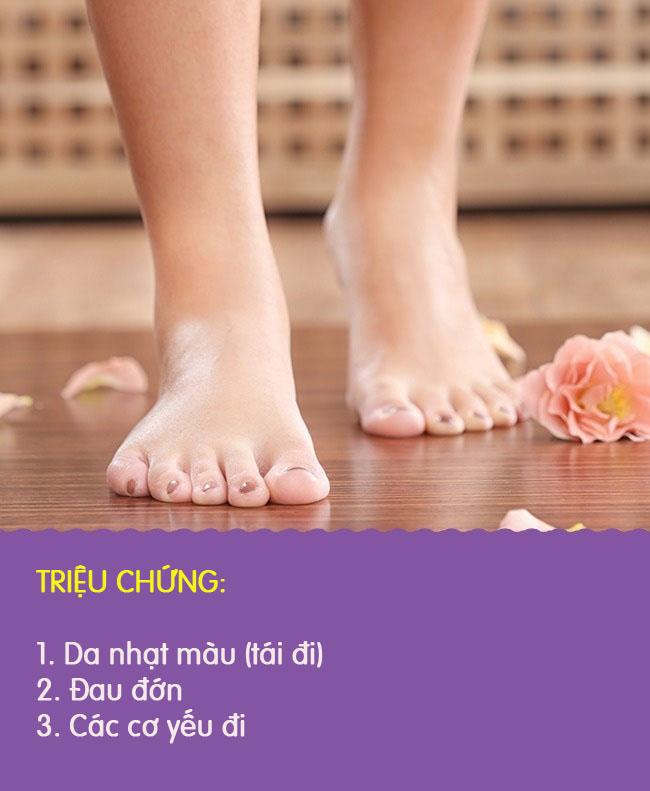 8 biểu hiện khác lạ ở chân là dấu hiệu cảnh báo có thể bạn đang gặp bệnh nghiêm trọng - Ảnh 8.