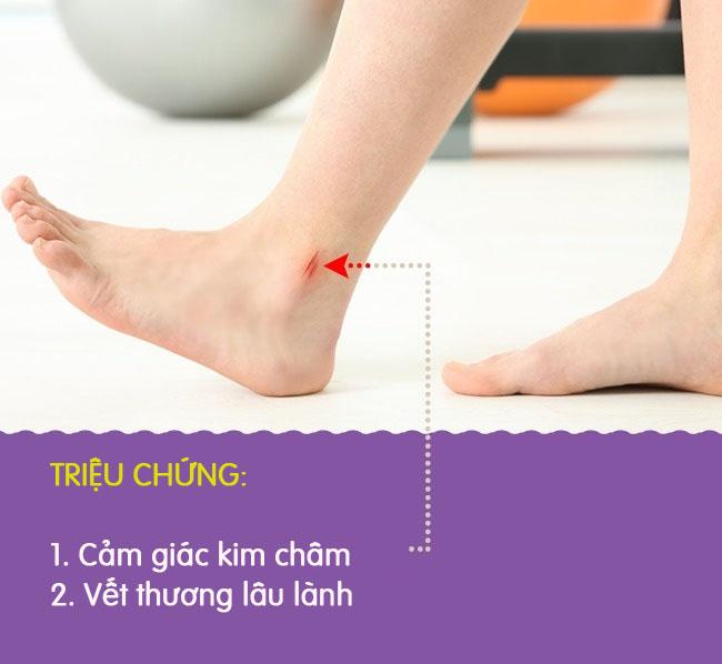 8 biểu hiện khác lạ ở chân là dấu hiệu cảnh báo có thể bạn đang gặp bệnh nghiêm trọng - Ảnh 9.