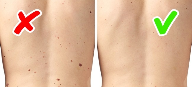 8 biểu hiện trên da cảnh báo bệnh trong cơ thể có thể bạn đang mắc mà không biết - Ảnh 5.