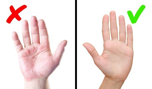 8 biểu hiện trên da cảnh báo bệnh trong cơ thể có thể bạn đang mắc mà không biết - Ảnh 7.