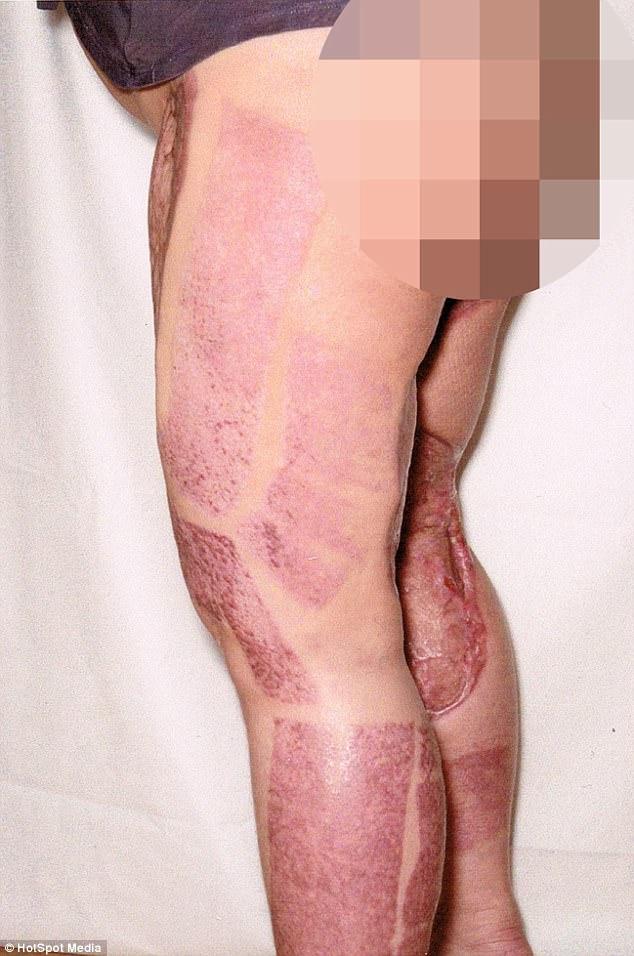 Dọn dẹp vùng bikini, một phụ nữ hôn mê 9 ngày, xém mất hai chân chỉ vì… - Ảnh 4.