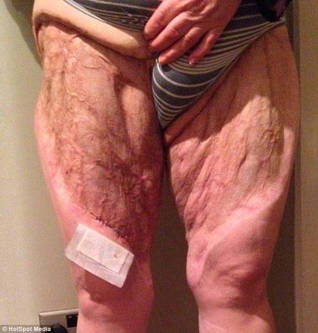 Dọn dẹp vùng bikini, một phụ nữ hôn mê 9 ngày, xém mất hai chân chỉ vì… - Ảnh 6.