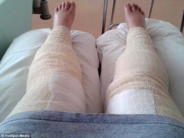 Dọn dẹp vùng bikini, một phụ nữ hôn mê 9 ngày, xém mất hai chân chỉ vì… - Ảnh 2.