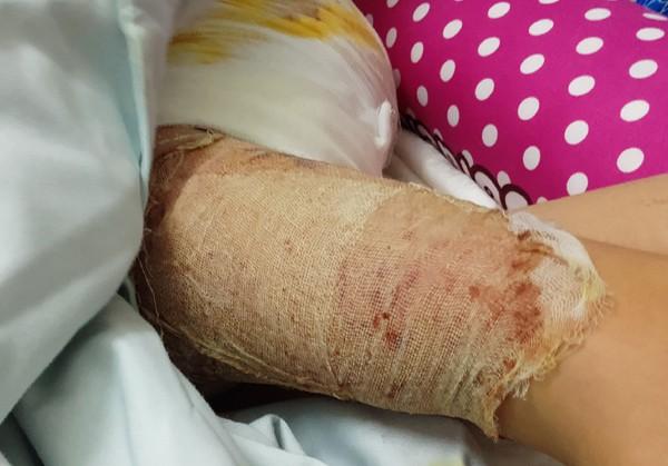 Các Bác sĩ lấy da phần đùi để ghép lên phần bị bỏng.