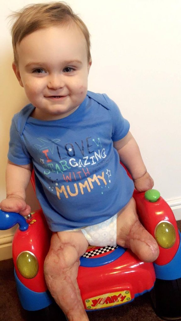 Viêm màng não đã khiến bé trai này chịu thương tổn thế nào, các cha mẹ cần biết - Ảnh 8.
