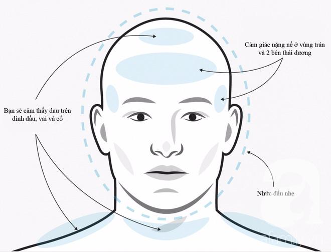 Không phải cơn đau đầu nào cũng giống nhau, phải biết phân biệt để điều trị đúng cách và kịp thời - Ảnh 2.