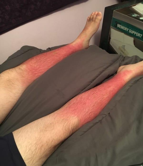 Những thảm cảnh cháy nắng mùa hè khiến bạn không thể yêu thêm những ngày nắng nóng - Ảnh 15.