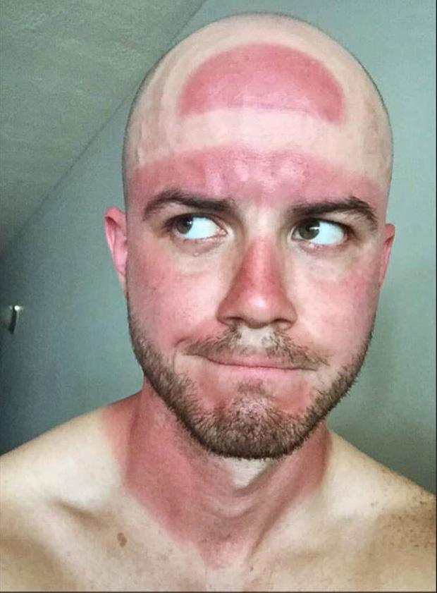 Những thảm cảnh cháy nắng mùa hè khiến bạn không thể yêu thêm những ngày nắng nóng - Ảnh 12.