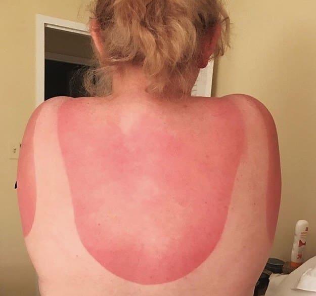 Những thảm cảnh cháy nắng mùa hè khiến bạn không thể yêu thêm những ngày nắng nóng - Ảnh 11.