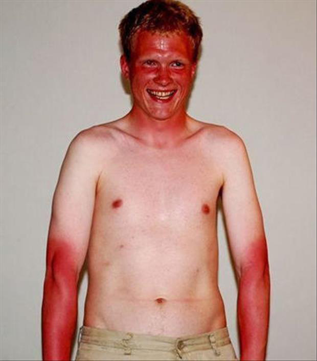 Những thảm cảnh cháy nắng mùa hè khiến bạn không thể yêu thêm những ngày nắng nóng - Ảnh 7.