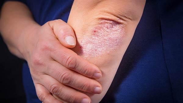Bệnh vẩy nến khiến không ít người khổ sở và đây là những điều cần biết để phòng tránh - Ảnh 1.