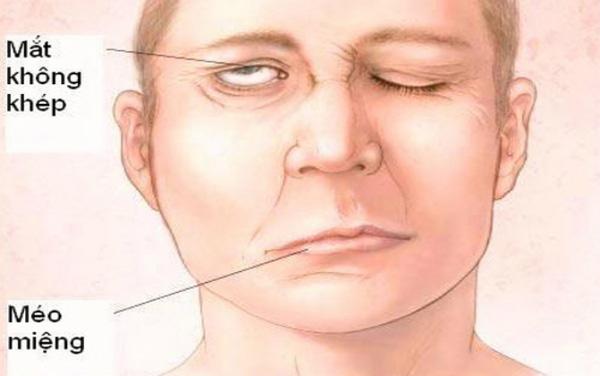 Angelina Jolie bị chẩn đoán liệt mặt và đây là những điều bạn cần biết về căn bệnh đáng sợ - Ảnh 3.
